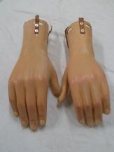 restauracion-manos-burlada-antes
