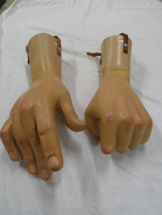 restauracion-manos-burlada-antes-2