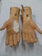 restauracion-manos-burlada-antes-3